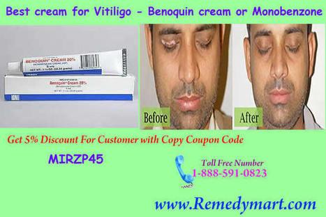 Benoquin Cream - A Successful Treatment for Excessive Vitiligo | Remedystore | Scoop.it