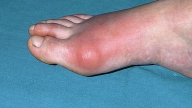 Gout: Why I Don't Find it Funny at All | Podiatry and Dermatology News | Scoop.it