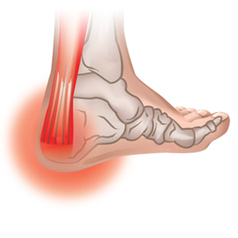 Foot Problems | Foot Pain from Shoes | Foot Pain Relief | FootSolutions Canada | Health | Scoop.it