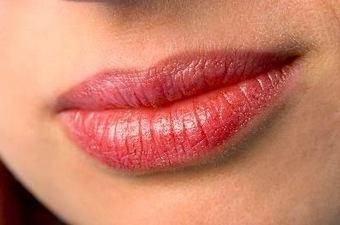 Minor Issues which Aggravate Angular Cheilitis | Health Tips | Health Tips | Scoop.it