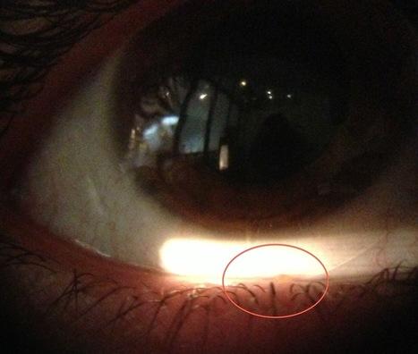 Meibomitis y lentes de contacto | Casos de óptica y optometria | Scoop.it