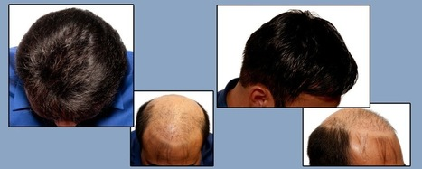 Hair loss treatments for men and women vary, just like the variation in the causes, results and process of hair thinning between these two genders. | Purple Panda Global | Scoop.it