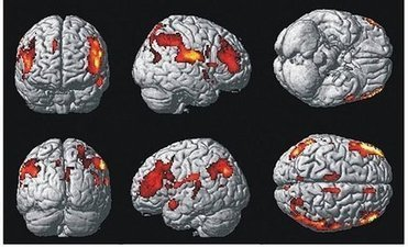 Study: Schizophrenia is 8 diseases   WBND (TV-Michigan City, MI)   CALS in the News   Scoop.it