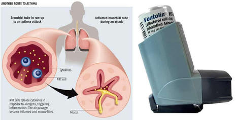 Ventolin and Albuterol- Are They the Same? | Online-pharmacy | Scoop.it