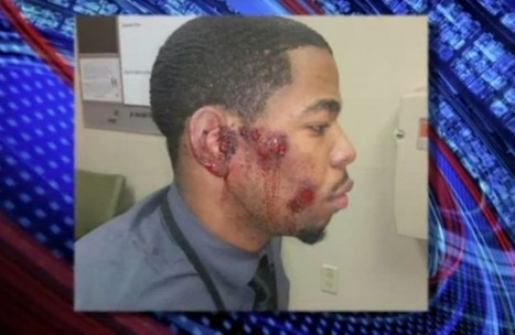 Police In St. Louis County Admit They Beat Up The Wrong Young Black Man | LibertyE Global Renaissance | Scoop.it