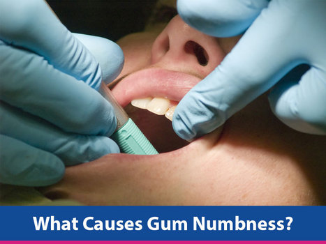 What causes Gum Numbness and How to Treat Gum Disease? | fashion | Scoop.it