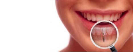 Dental implants: 3 Aftercare Techniques for Long LastingSmile   Health   Scoop.it