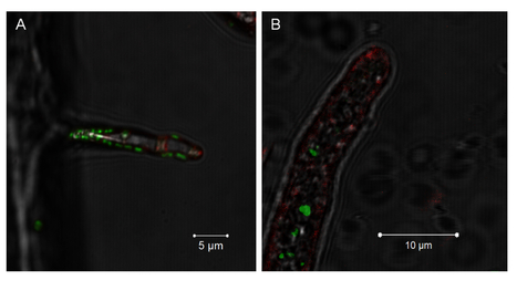 eLIFE: Active invasion of bacteria into living fungal cells | plant pathology | Scoop.it