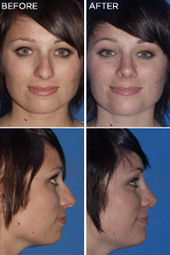San Diego Nose Job | Facelift San Diego Surgeon | Scoop.it