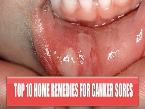 How To Get Rid Of Canker Sores Fast   Get rid of canker sores   Scoop.it