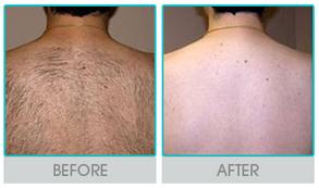 Laser Hair Removal London | Lotusclinic | Scoop.it