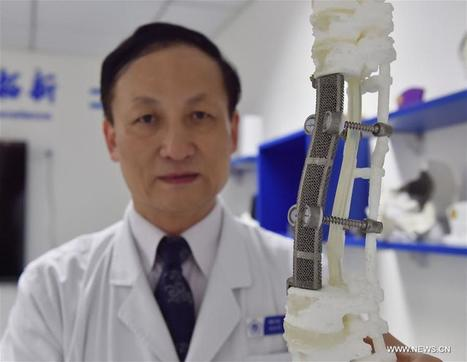 China Focus: Chinese doctors succeed in rare 3D-printed vertebrae implant - Xinhua   English.news.cn   Dernières innovations technologiques   Scoop.it