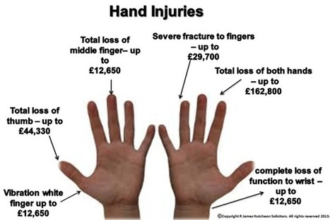 Hand injury of accident at work   OHS and Investigation   Scoop.it