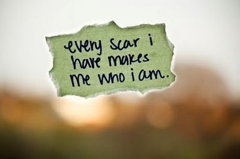Can you handle the scars of life ? | Leadership Mantra | Scoop.it