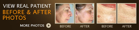 Laser skin resurfacing | Aesthetic Solutions NC | Scoop.it