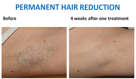 Permanent Solution to Unwanted Body Hair for Men | Laser & Medi Treatments | Scoop.it