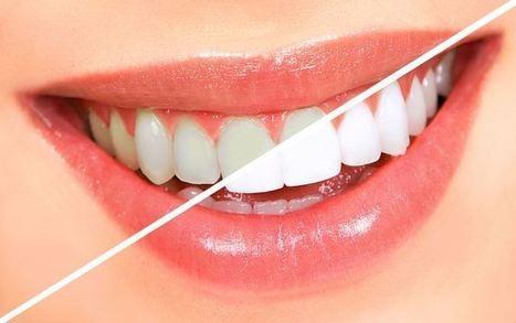 Teeth Whitening Gel | Shopping | Scoop.it