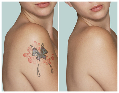 Practically Everything You Need to Know About the Process of Tattooing and Tattoo Removal Options - Disappearing Ink NYC | Business and Stuff | Scoop.it