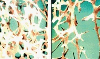 Wanneer moet u zich laten testen op osteoporose? | Voeding en vrouw in de overgang | Scoop.it