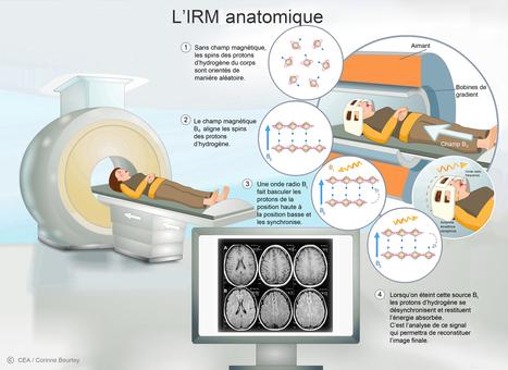 L'imagerie médicale   Le Grenier d'Elise   Scoop.it