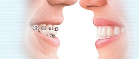 Invisalign: Clear and Modern Approach to Straightening Teeth - How Important | Dental Clinic | Scoop.it