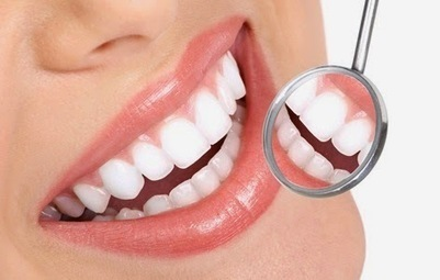 Teeth Whitening Tips and Tricks: Teeth Whitening Tips and Tricks | Tooth Extraction in Victorville CA | Scoop.it