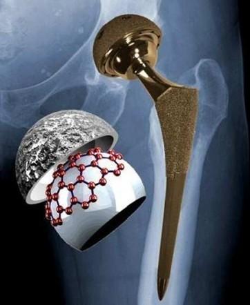 Primer paso hacia prótesis de cadera más eficaces y duraderas — Noticias de la Ciencia y la Tecnología (Amazings®  / NCYT®) | Innovación Medica | Scoop.it