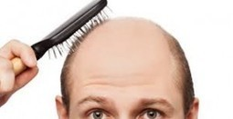 Iron Deficiency Hair Loss - Causes, Symptoms, Prevention   Heme iron   Scoop.it
