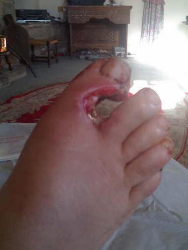 Foot Pain: Shot myself in the foot   eFootAndAnkle   eFootandankle   Scoop.it