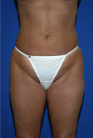 Fat remodeling and body reshaping with liposuction by Faceliftbocaraton | Breast augmentation Boca Raton | Scoop.it