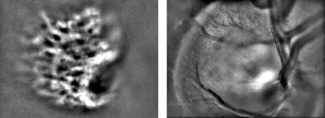 Imagine Eyes - rtx1™ Adaptive Optics Retinal Camera brings cellular resolution | Medical Engineering = MEDINEERING | Scoop.it