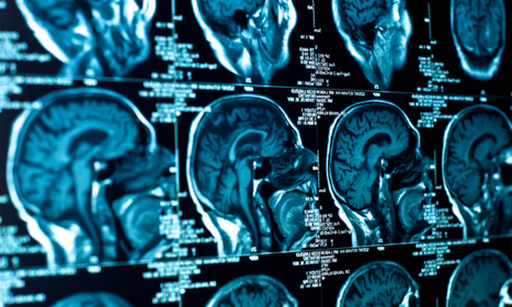 Doctor-patient relationship: Physicians' brain scans indicate doctors can feel their patients' pain -- and their relief | Psychology Professionals | Scoop.it