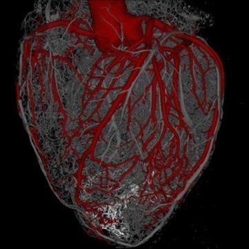 New study: Stem cells regenerate heart muscle - Total Biopharma : Total Biopharma | Stem Cells & Cell Culture | Scoop.it