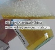What Does Foam In Urine Indicate | kidneyservicechina | Scoop.it