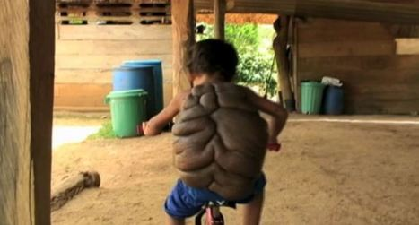 """6-Year-Old Turtle Boy's """"Shell"""" Has Been Removed 