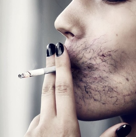 Smokers With A Newly Discovered Genetic Marker Are More Likely To Get Lung Cancer | Substance Use and Addiction | Scoop.it