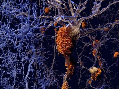 Alzheimer's-causing proteins could be reduced with a healthy diet, exercise | Radiant Health | Scoop.it