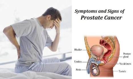 Risk Factors Symptoms and Signs  of Prostate Cancer  ! | Prostate Health- Advances, Knowledge, Integrative & Holistic Treatments | Scoop.it