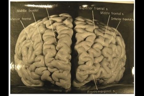 Snapshots explore Einstein's unusual brain | Science And Wonder | Scoop.it