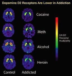 Drinking Alcohol Shrinks Critical Brain Regions in Genetically Vulnerable Mice   addiction and its treatment   Scoop.it