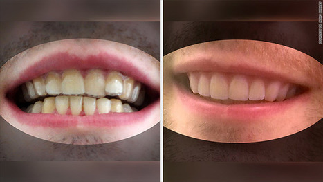 College student 3D prints his own braces | MyAdvisorSays | Scoop.it