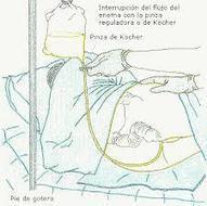 E.D.E.N.V : AUXILIAR DE ENFERMERIA | fundamentos de enfermeria | Scoop.it
