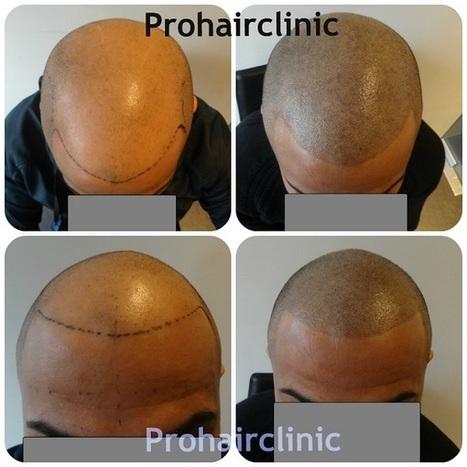 Micro Scalp Pigmentation | Prohair Clinic | Scoop.it