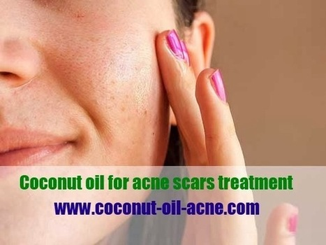 Coconut oil for acne scars treatment | Does Coconut Oil Really Treat Acne? If so How? | Scoop.it