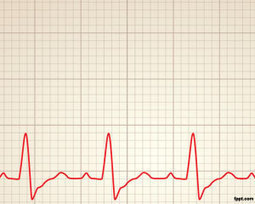 Plantilla PPT de Ritmo Cardiaco Gratis | Plantillas PowerPoint Gratis | Plantillas para Power Point | Scoop.it