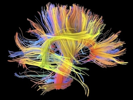 'Wiring diagrams' link lifestyle to brain function : Nature News & Comment | Mind-Body-Shift | Scoop.it
