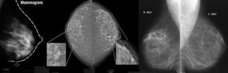 Mammography helps in early detection of breast cancer and increases the chances of survival | Comprehensive Breast Center | Scoop.it