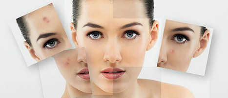 Healthy skin care tips - Summer skin care tips | Health Finance Blog | Health Tips, Fitness Advice, Beauty Reviews & Fashion News | Scoop.it