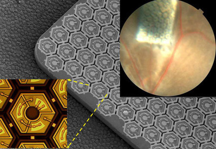 Infra-Red Retinal Prosthesis Restores Sight From an Ultra-Thin Package | shubush healthwear | Scoop.it