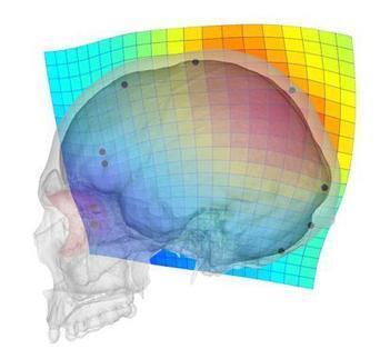 La evolución del cráneo humano ha propiciado problemas visuales y neurológicos | Salud Visual 2.0 | Scoop.it